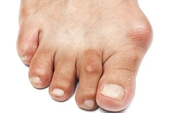 Bunions treatment in Farmington, MI 48335 and Berkley, MI 48072