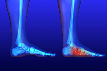 Flat Feet Treatment in the Farmington, MI 48335 and Berkley, MI 48072 area