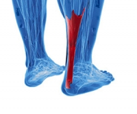 Symptoms of an Achilles Tendon Injury