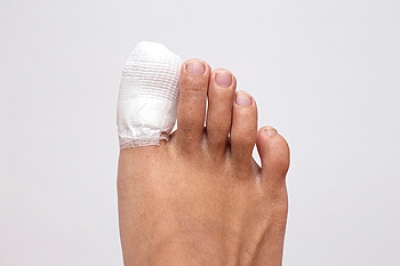 Is My Toe Mildly or Severely Fractured?