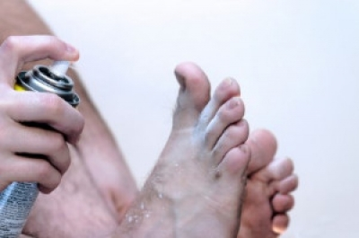 What is Athlete's Foot and How to Prevent It