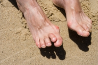 Which Toes Are Generally Affected by Hammertoe?
