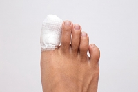 What Happens When a Toe Is Broken?