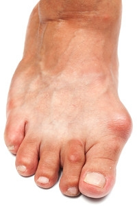 How to Treat a Bunion