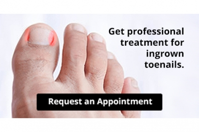 Are You Suffering From Ingrown Toenails?